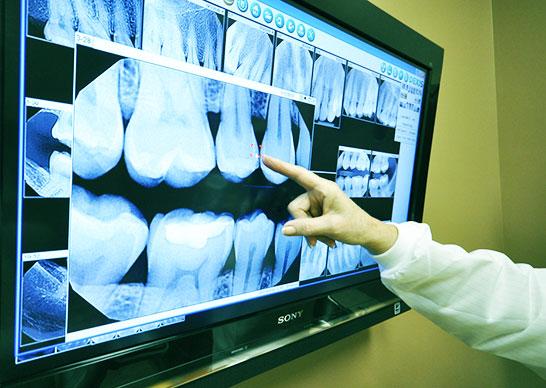 3d-x-rays
