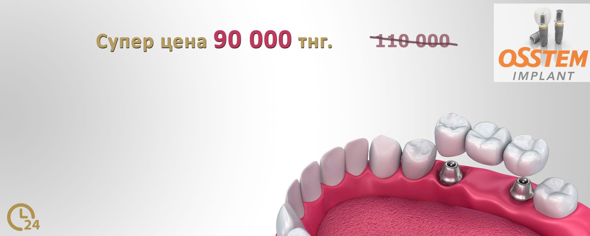 Установка имплантов системы «Osstem»