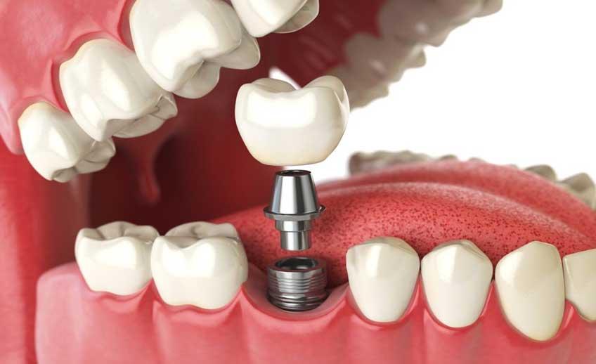 Dental Implants Service 1