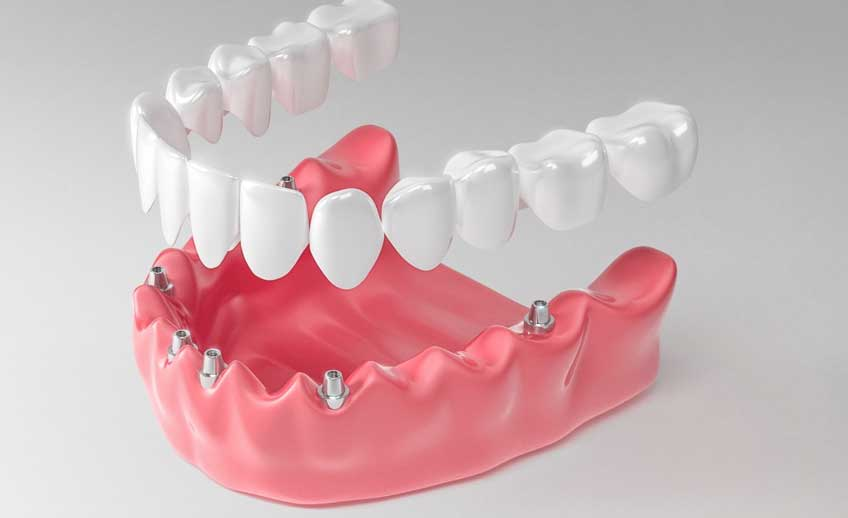 Denture Treatment Service 2