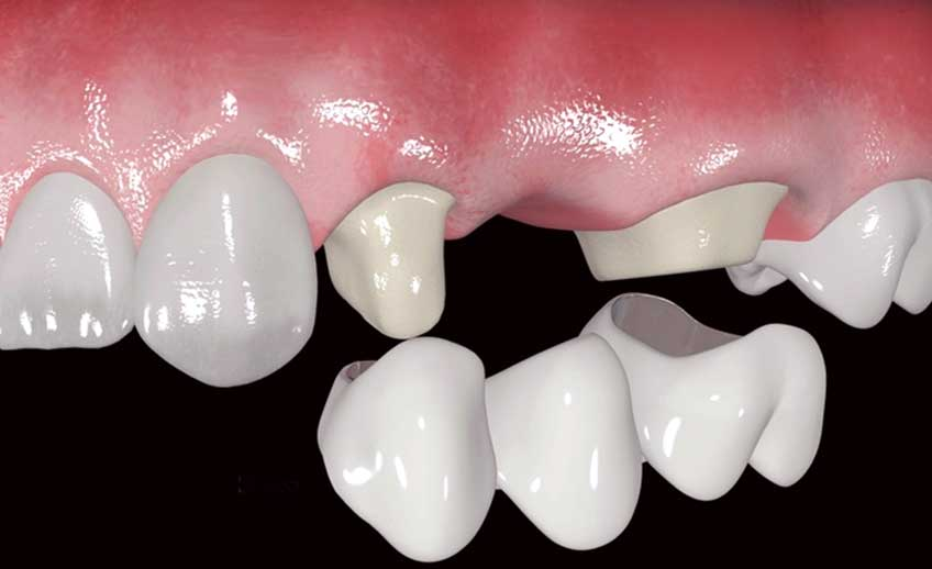 Denture Treatment Service 3