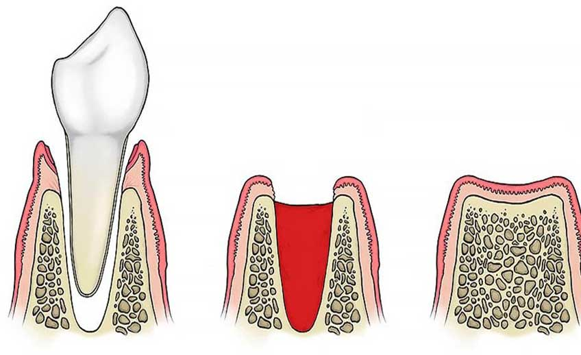 Extraction Tooth Service 2