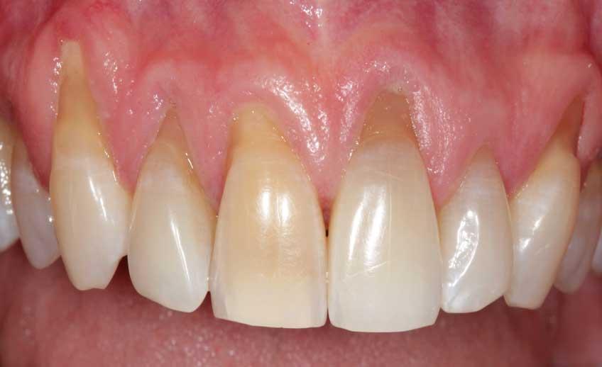 Gum Treatment Service 2