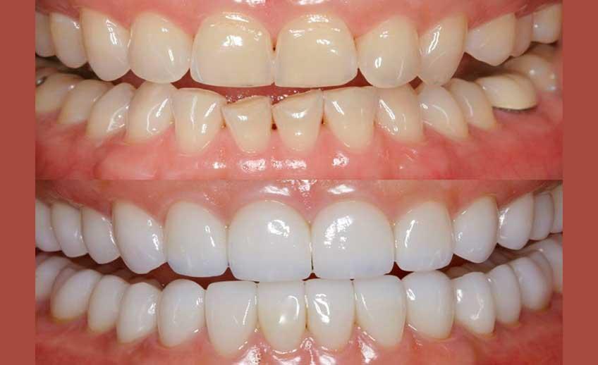 Restoration Teeth Service 2